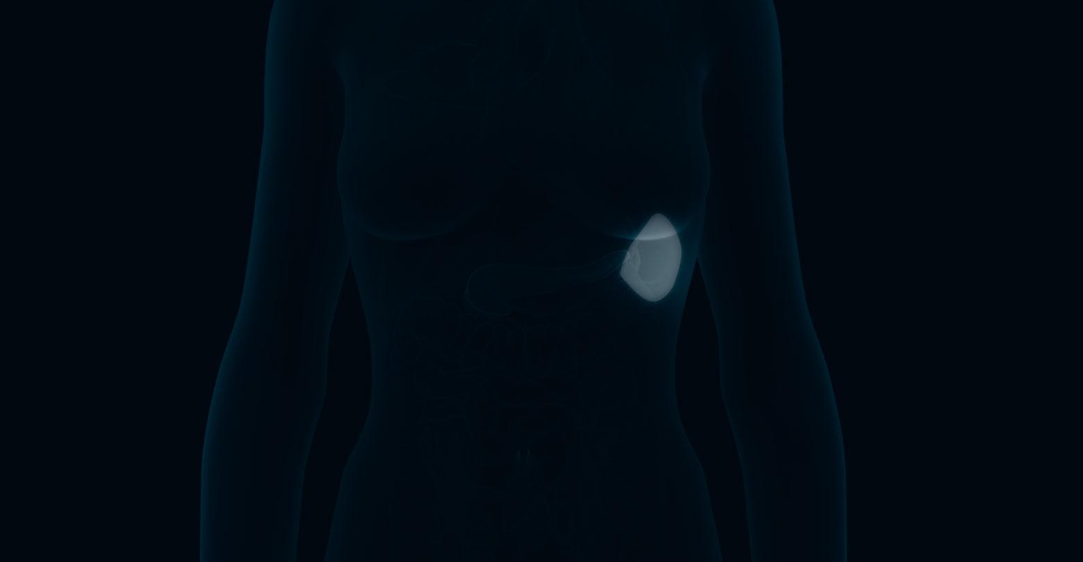 Benign tumours of the spleen